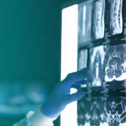 Arzt mit CT-Bildern auf einem Monitor